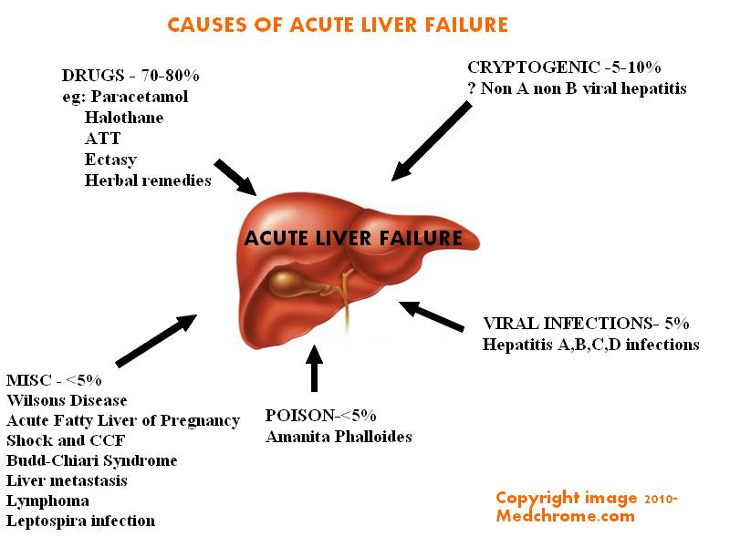 acute-liver-failure
