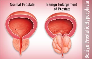 benign-enlargement-of-prostate