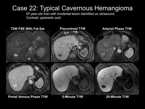 haemangioma