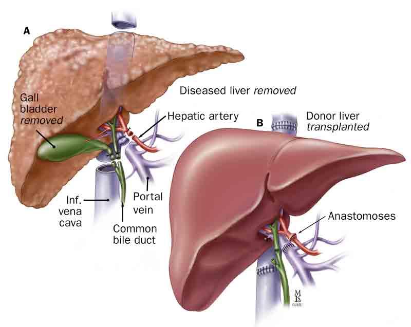 liver_transplantation