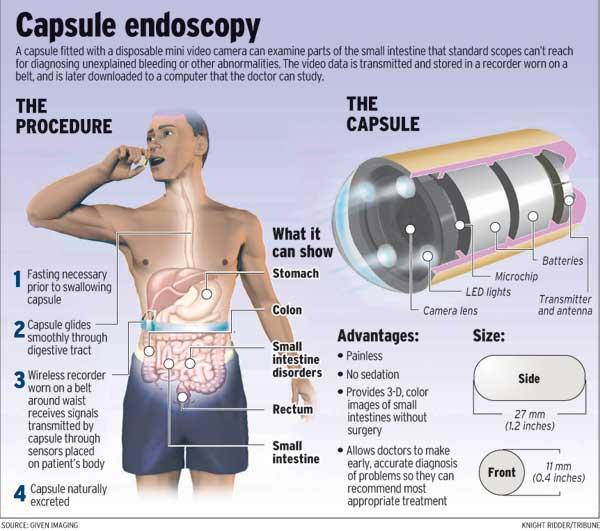 capendoscopy