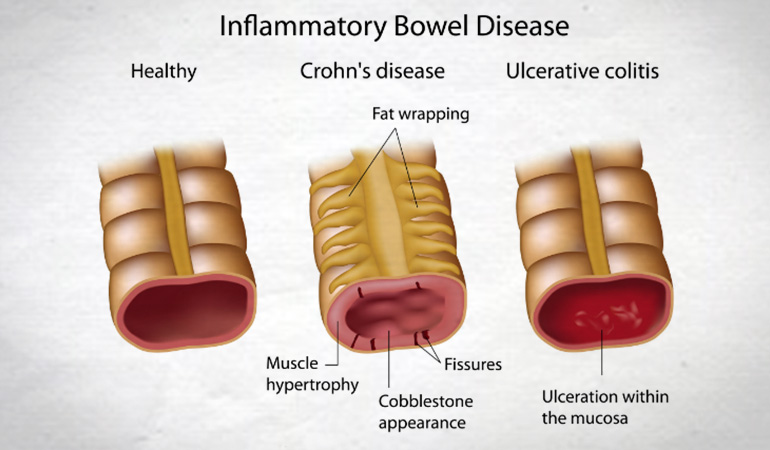 risk_inflammatory_bowel_disease_770new